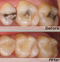 Composite Fillings in Woodland Hills