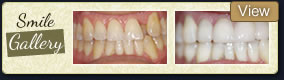 smile galley dentist woodland hills