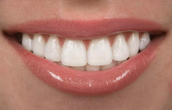 Ceramic Veneers in Woodland Hills